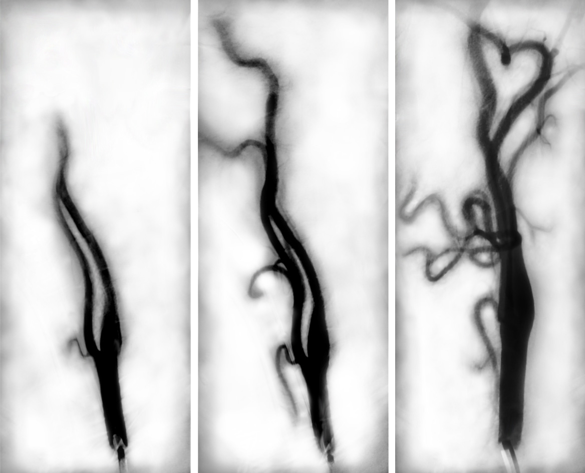 Angiogram Triptych by Lesley Taylor © 2017